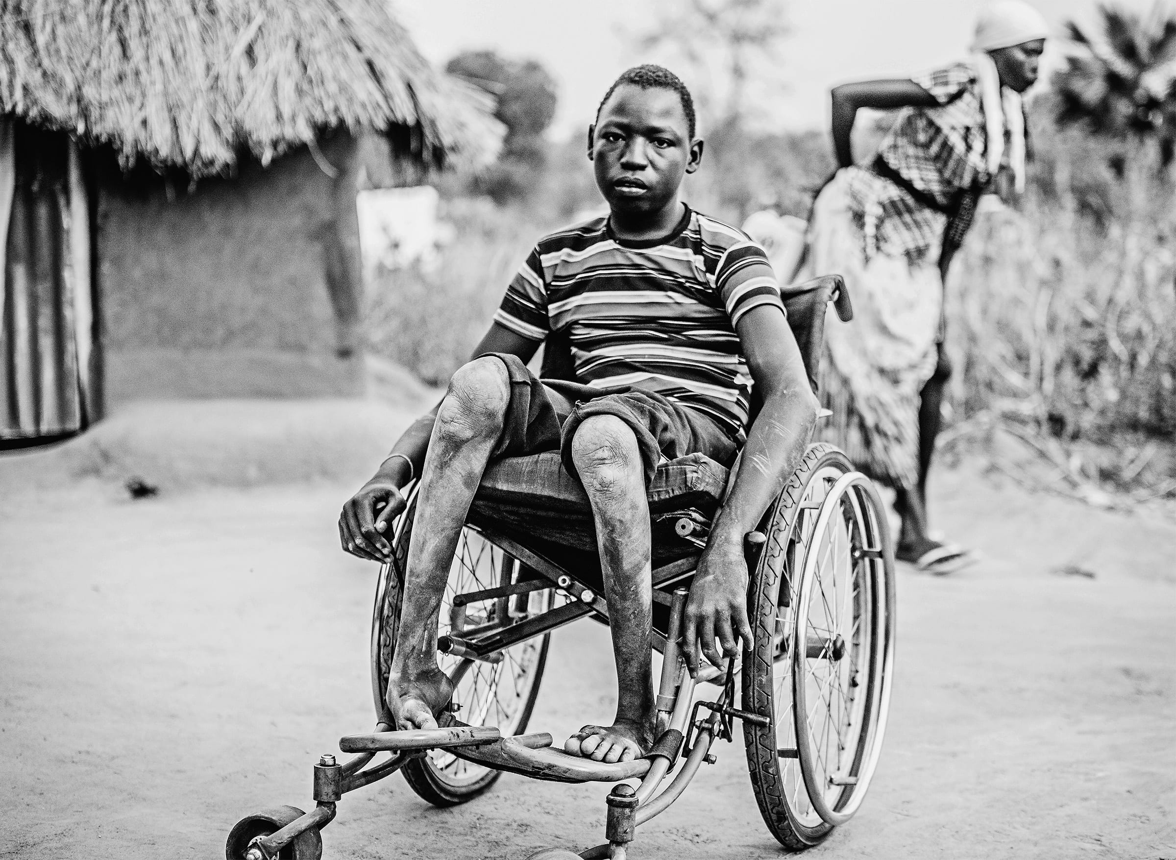 a teenage boy in a wheelchair outside a hut as a woman hobbles past behind him